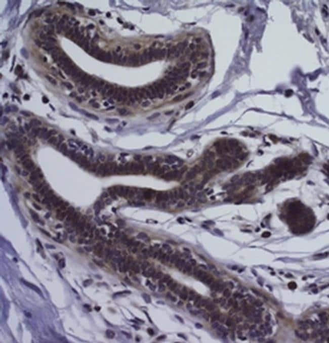 CD326 (EpCAM) Antibody in Immunohistochemistry (Paraffin) (IHC (P))