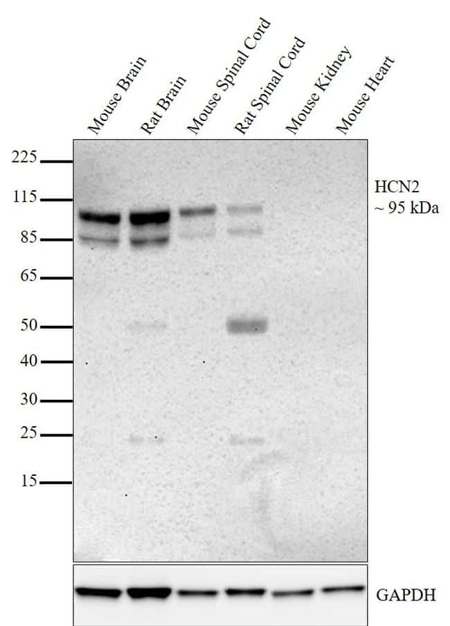 HCN2 Antibody in Relative expression