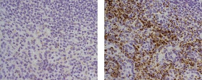 Thrombospondin-1 Antibody in Immunohistochemistry (Paraffin) (IHC (P))