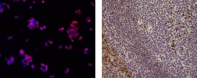 SOX9 Antibody in Immunocytochemistry (ICC)