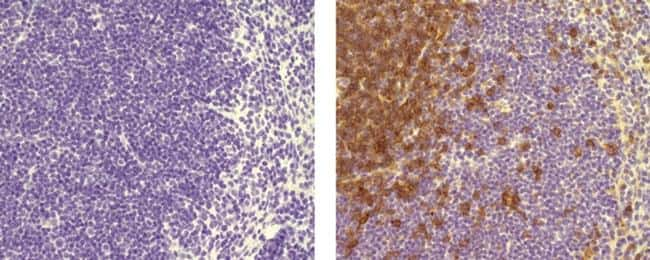 CD4 Antibody in Immunohistochemistry (Paraffin) (IHC (P))