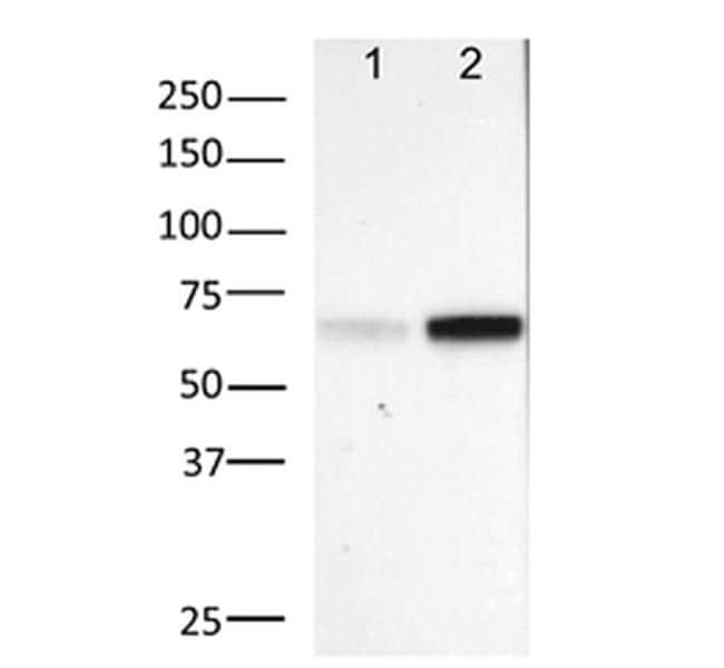 Phospho-NFkB p65 (Ser529) Antibody in Western Blot (WB)