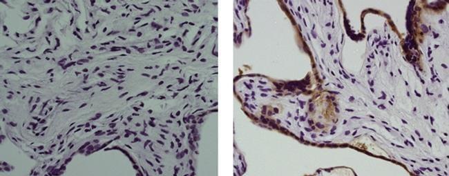 Placental Alkaline Phosphatase Antibody in Immunohistochemistry (Paraffin) (IHC (P))