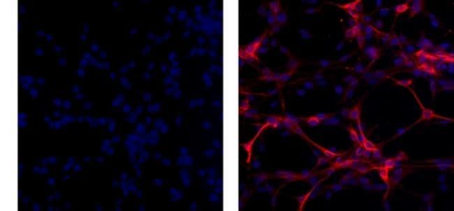 GFAP Antibody in Immunocytochemistry (ICC)