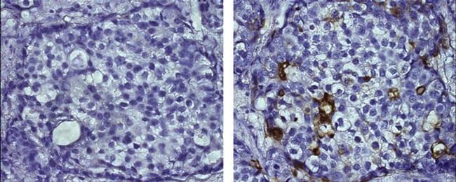 CD227 (Mucin 1) Antibody in Immunohistochemistry (Paraffin) (IHC (P))