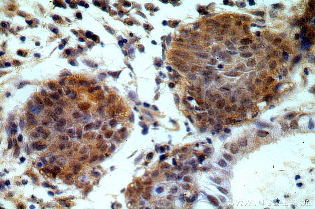 ESR2 Antibody in Immunohistochemistry (Paraffin) (IHC (P))