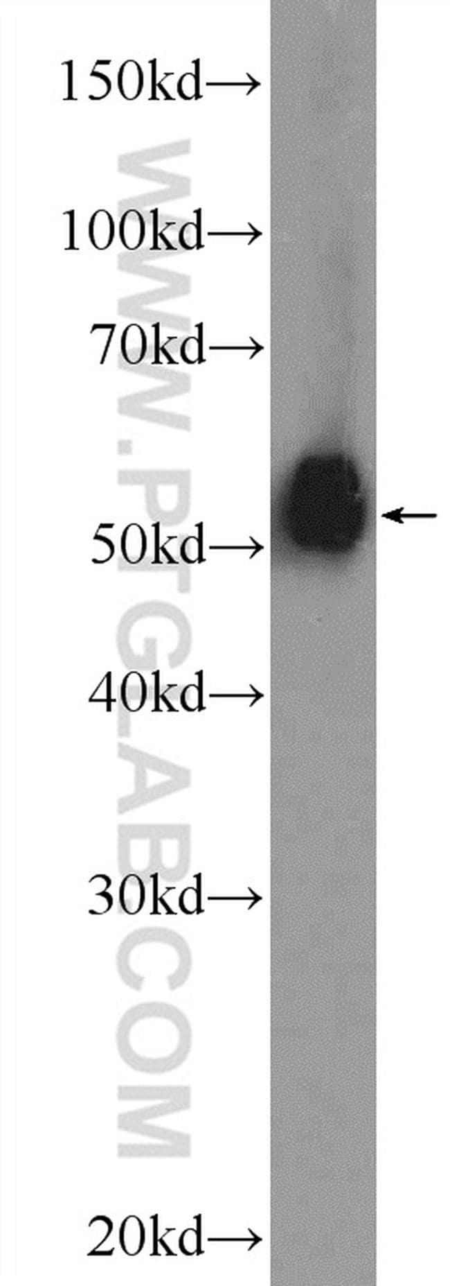 ESR2 Antibody in Western Blot (WB)