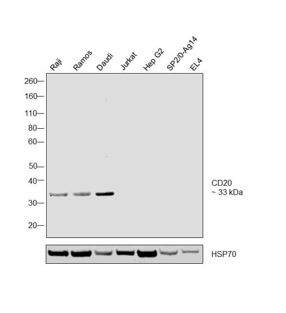 CD20 Antibody in Relative expression