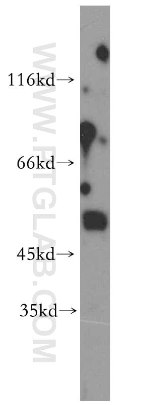 AADACL1 Antibody in Western Blot (WB)
