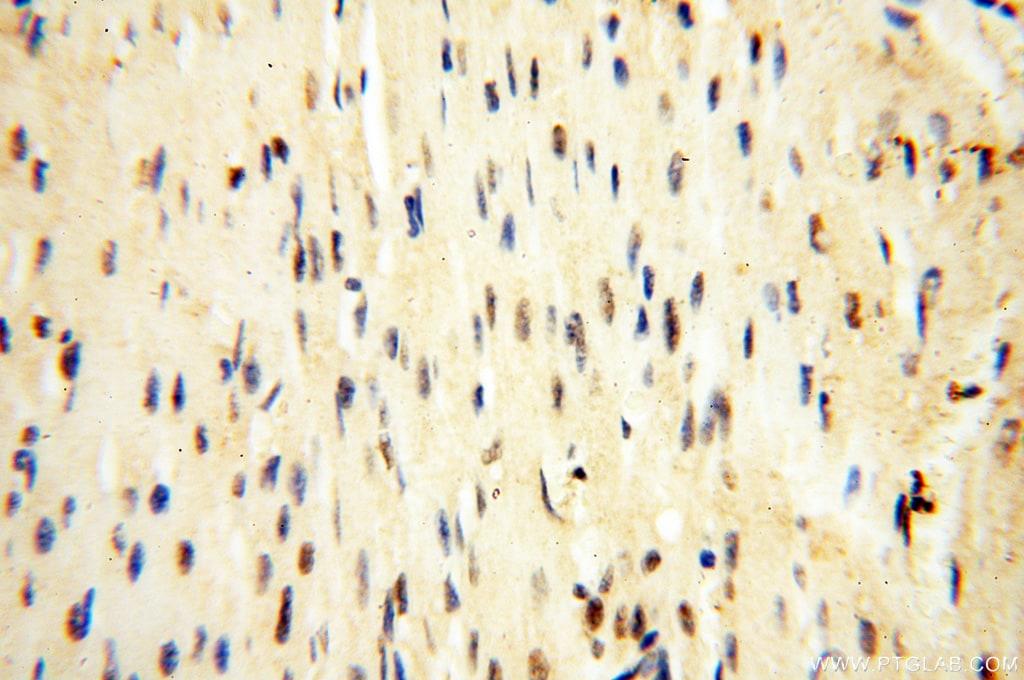 USP16 Antibody in Immunohistochemistry (Paraffin) (IHC (P))