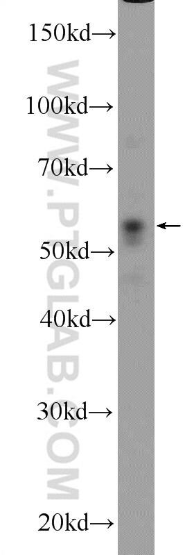 PARK2/Parkin Antibody in Western Blot (WB)