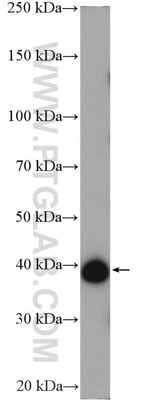 p38 MAPK Antibody in Western Blot (WB)