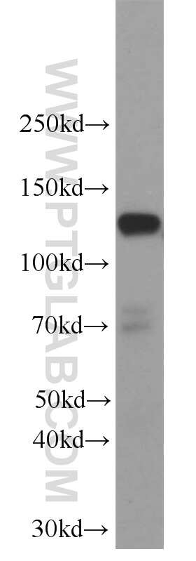 SREBF1 Antibody in Western Blot (WB)