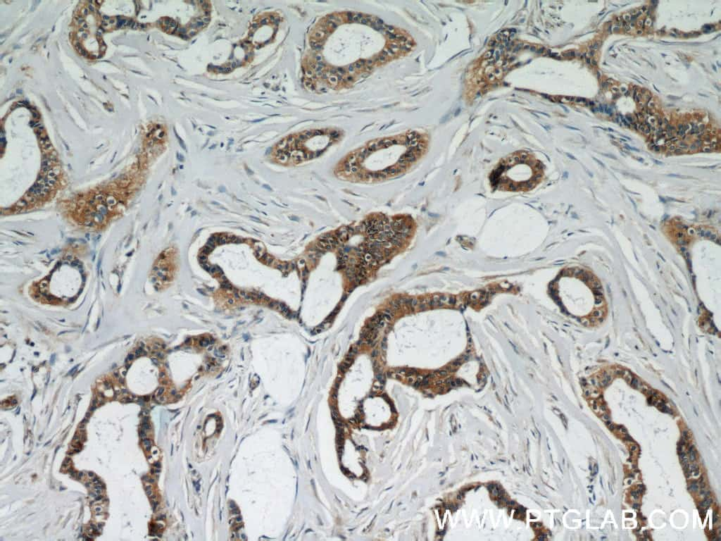 UBE2S Antibody in Immunohistochemistry (Paraffin) (IHC (P))