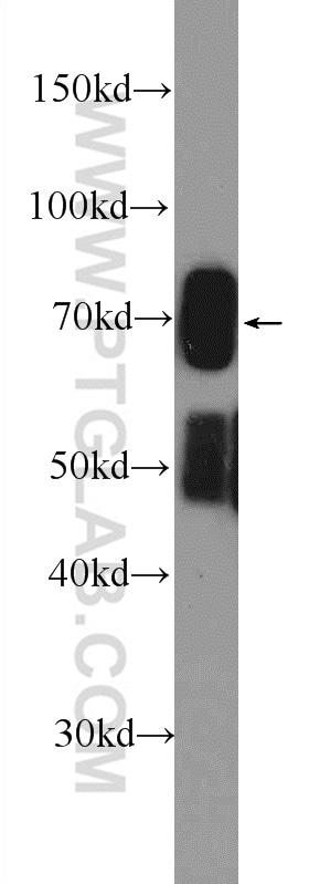 FADS Antibody in Western Blot (WB)