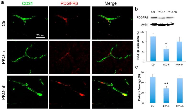 CD140b (PDGFRB) Antibody