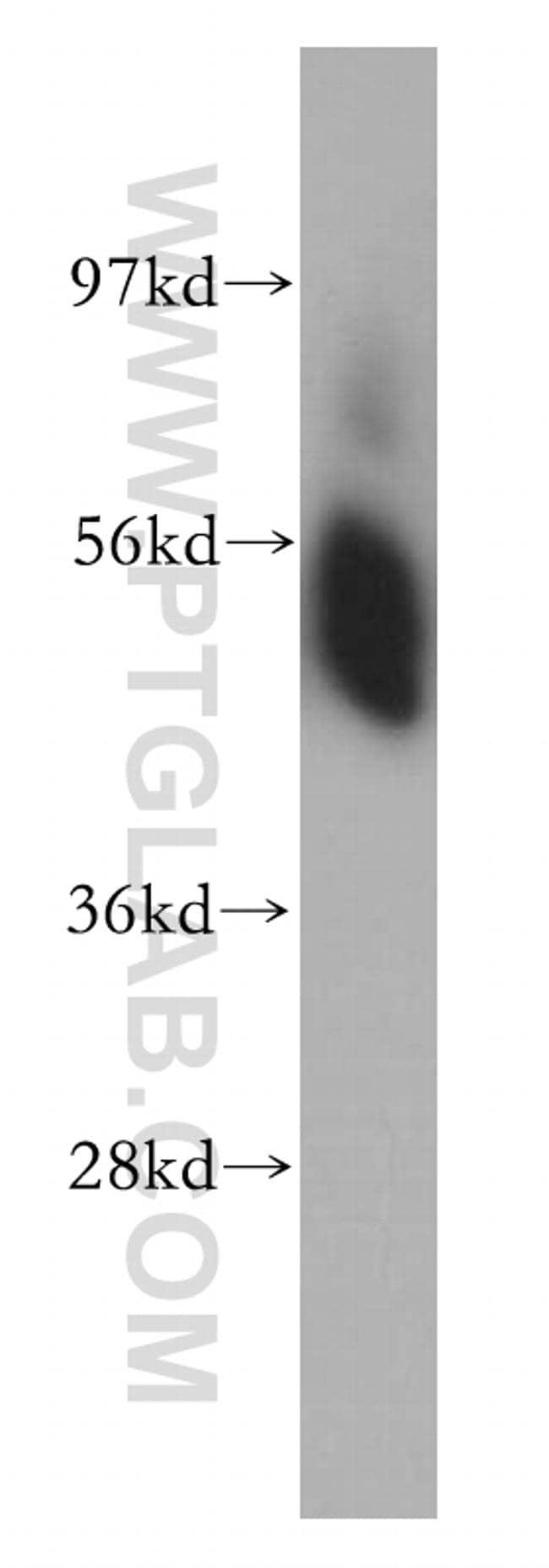 SHMT1 Antibody in Western Blot (WB)