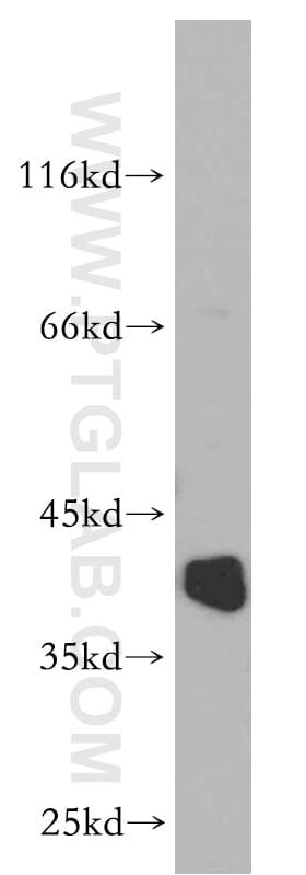 RP2 Antibody in Western Blot (WB)