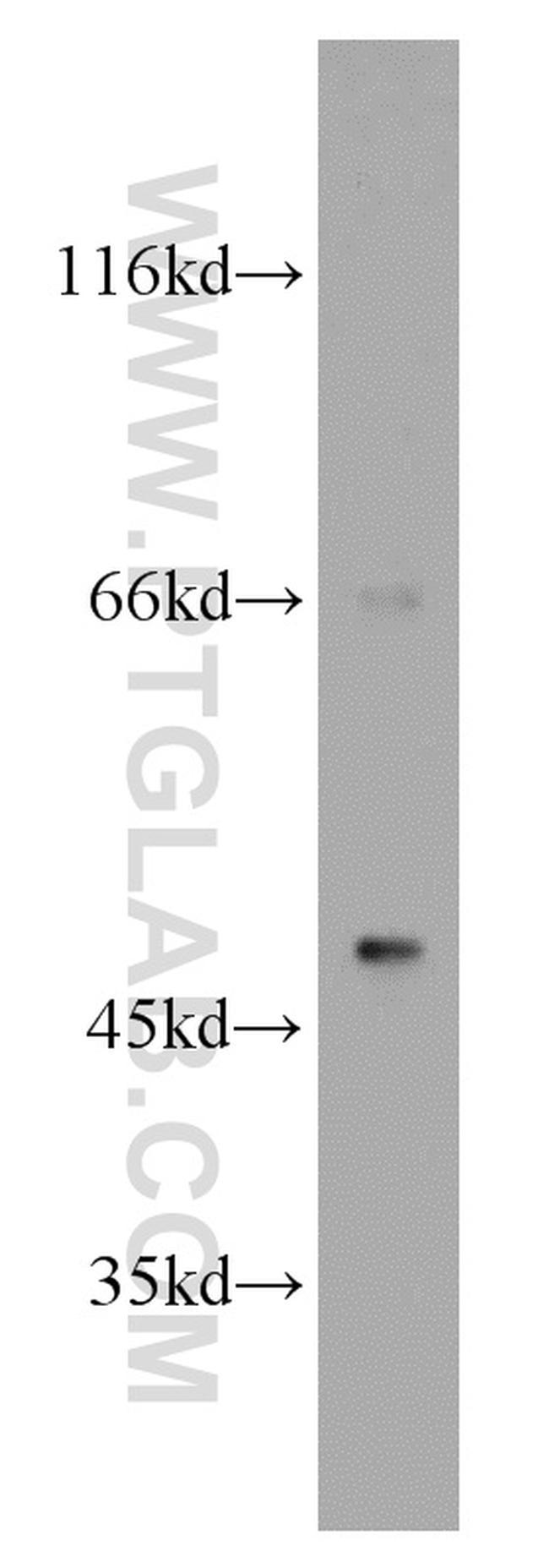 B3GALT2 Antibody in Western Blot (WB)