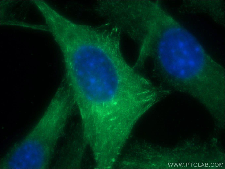 ACTN2 Antibody in Immunofluorescence (IF)