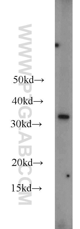 MBD3 Antibody in Western Blot (WB)
