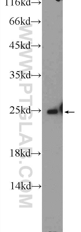 ARHGDIG Antibody in Western Blot (WB)