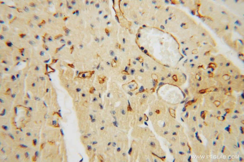 Thrombomodulin Antibody in Immunohistochemistry (Paraffin) (IHC (P))