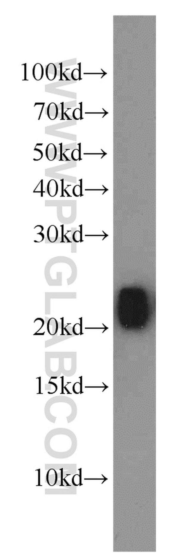 RHOB Antibody in Western Blot (WB)