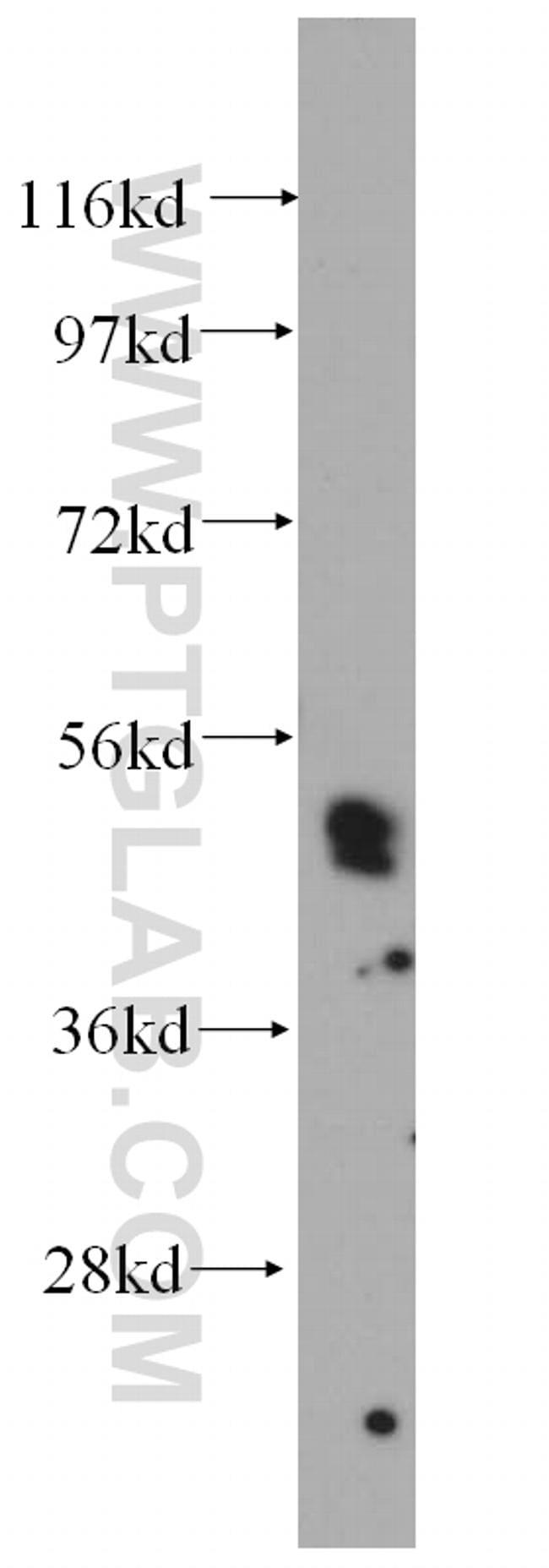 HLX Antibody in Western Blot (WB)