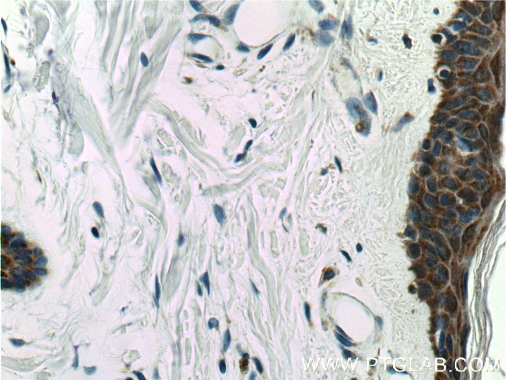 MAVS/VISA Antibody in Immunohistochemistry (Paraffin) (IHC (P))