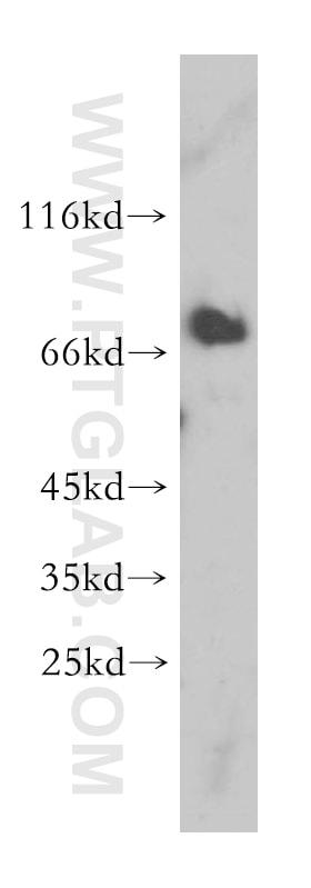 MAVS/VISA Antibody in Western Blot (WB)