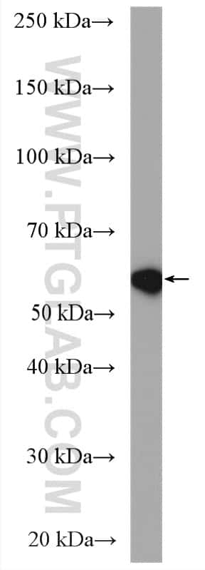 NOX4 Antibody in Western Blot (WB)