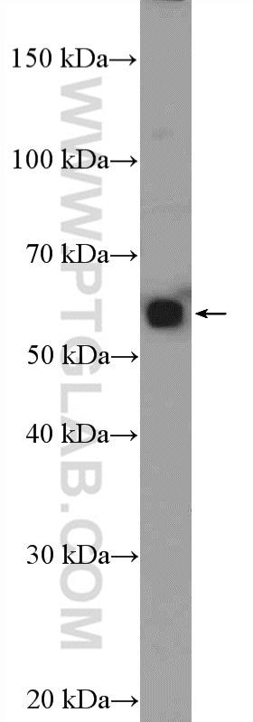 MEF2D Antibody in Western Blot (WB)