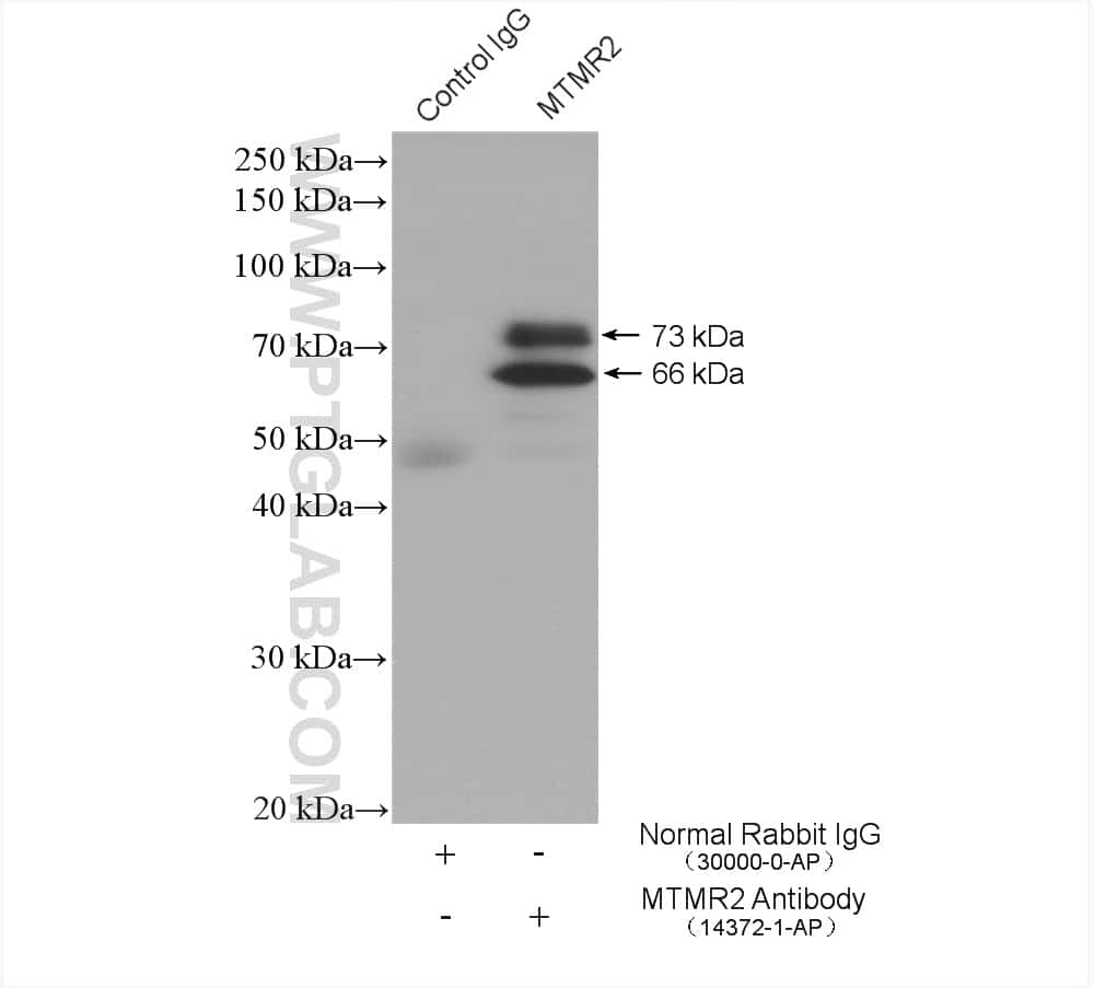 MTMR2 Antibody in Immunoprecipitation (IP)