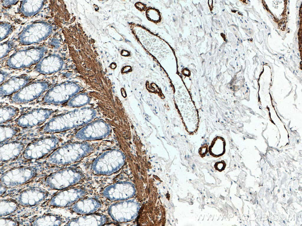 ACTA2/smooth muscle actin Antibody in Immunohistochemistry (Paraffin) (IHC (P))