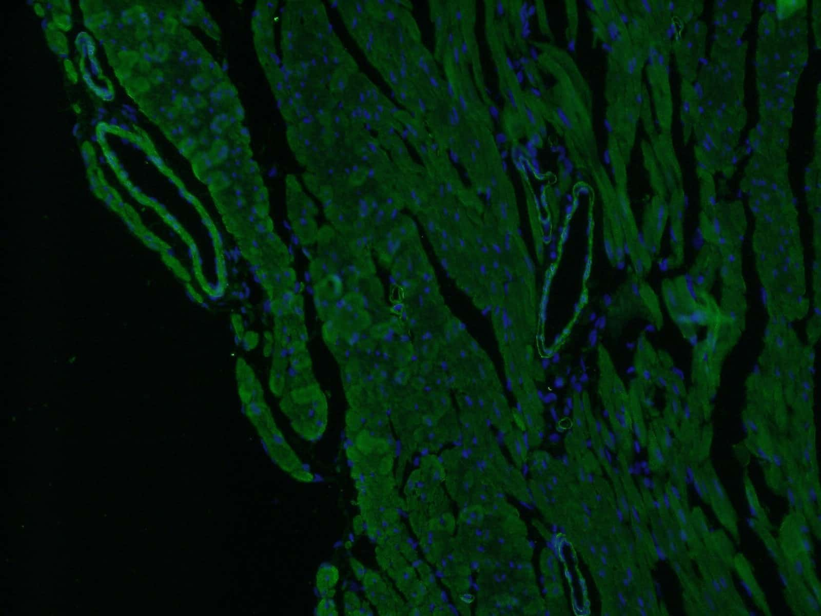 ACTA2/smooth muscle actin Antibody in Immunofluorescence (IF)