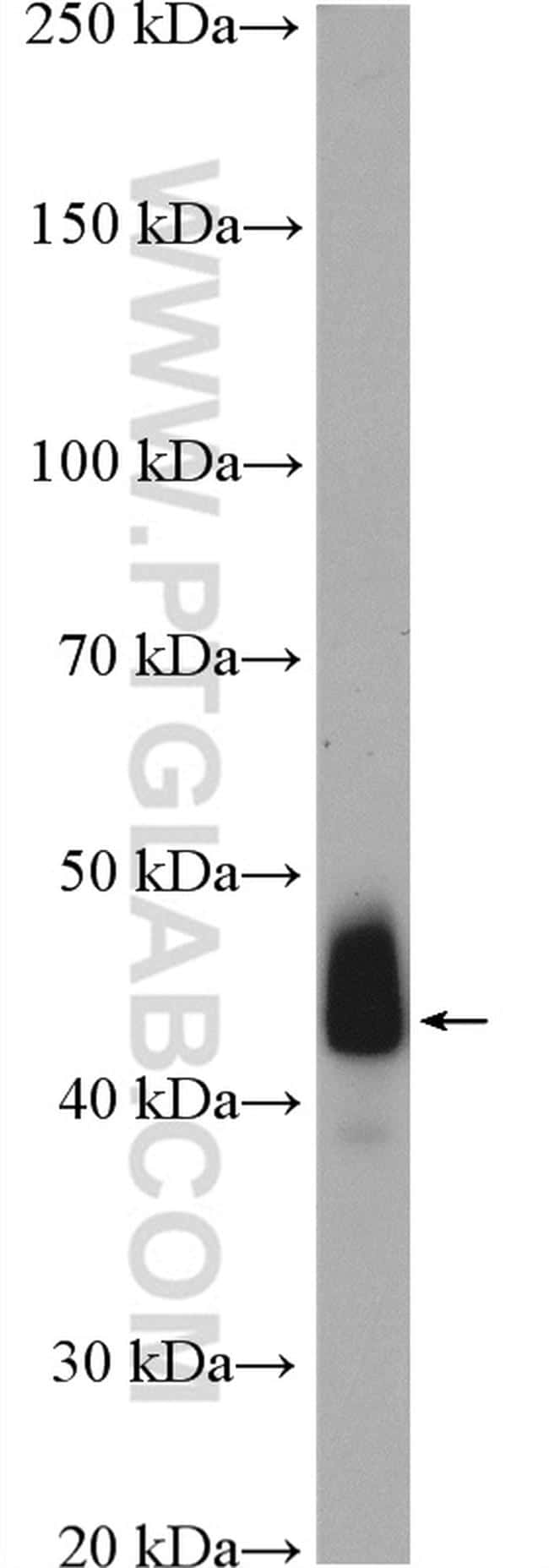ACTA2/smooth muscle actin Antibody in Western Blot (WB)