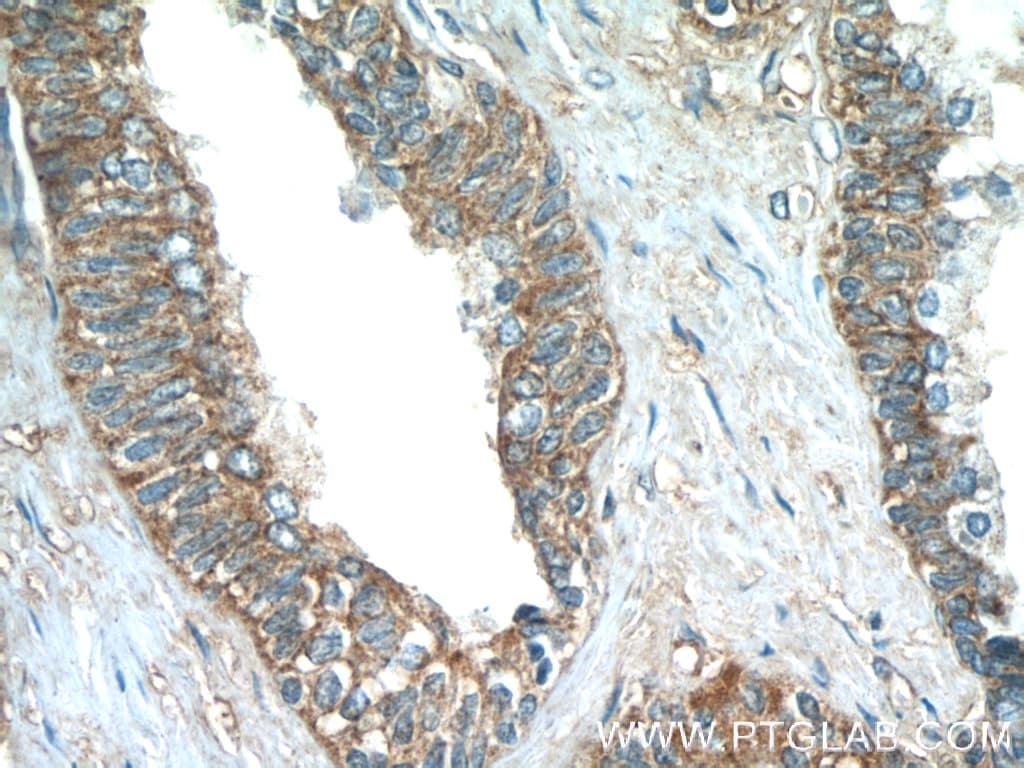 PASK Antibody in Immunohistochemistry (Paraffin) (IHC (P))