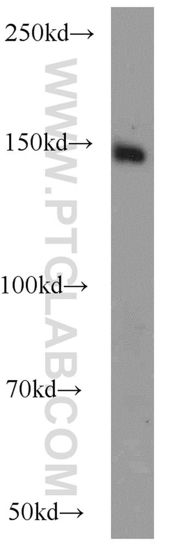PASK Antibody in Western Blot (WB)