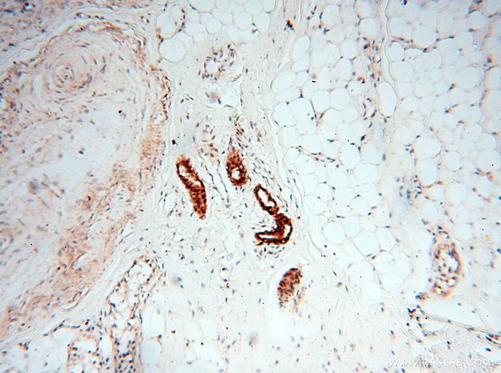 CLCNKA Antibody in Immunohistochemistry (Paraffin) (IHC (P))