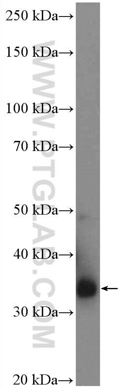 AMPK beta 2 Antibody in Western Blot (WB)