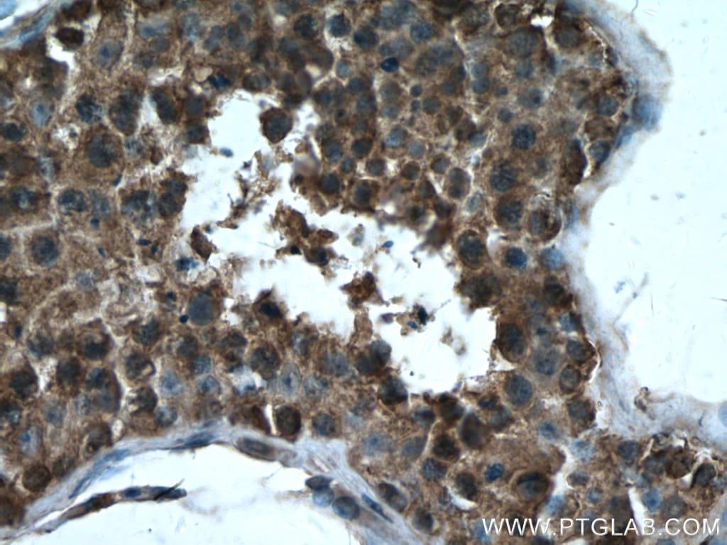 GPX4 Antibody in Immunohistochemistry (Paraffin) (IHC (P))