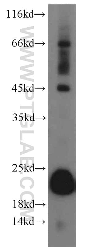 GPX4 Antibody in Western Blot (WB)