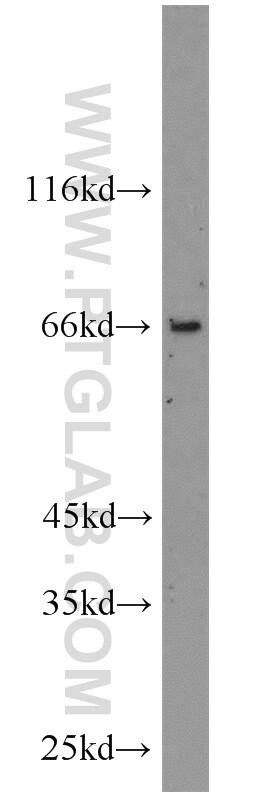TSHR Antibody in Western Blot (WB)
