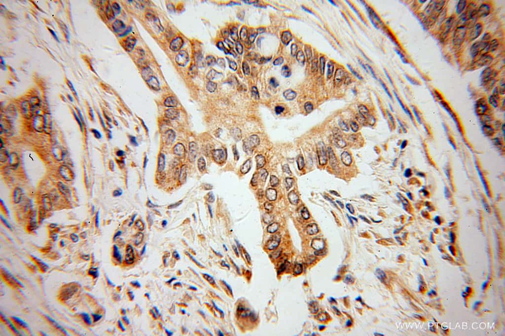 VAPB Antibody in Immunohistochemistry (Paraffin) (IHC (P))