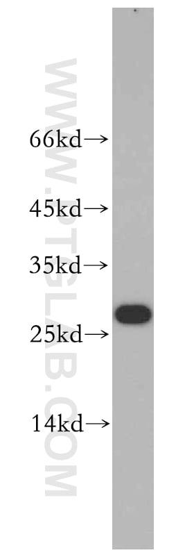 VAPB Antibody in Western Blot (WB)