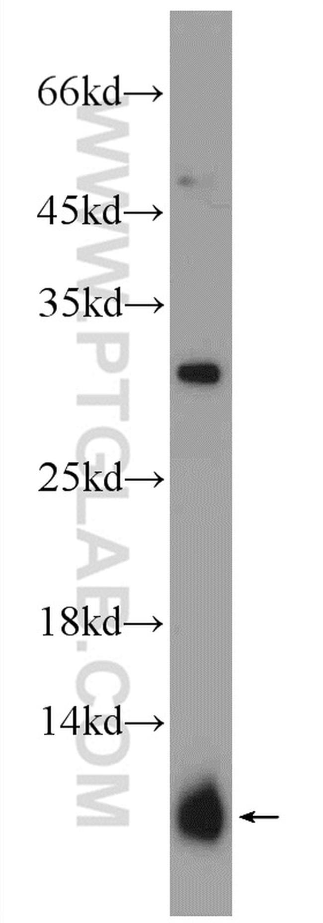 PRM2 Antibody in Western Blot (WB)