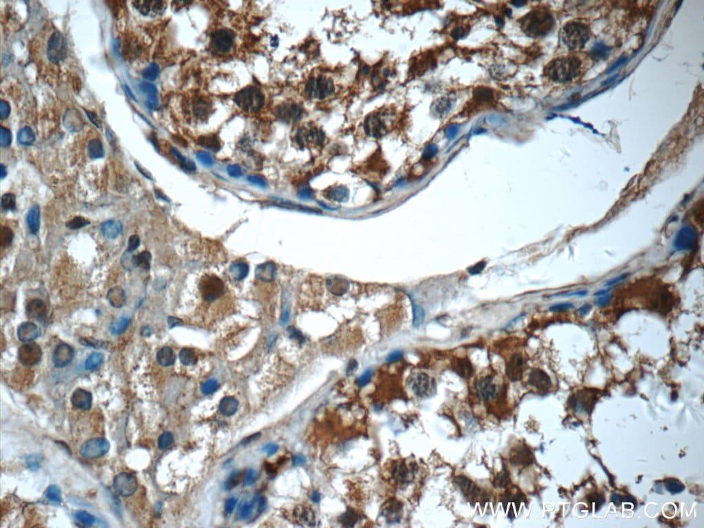 14-3-3 Antibody in Immunohistochemistry (Paraffin) (IHC (P))