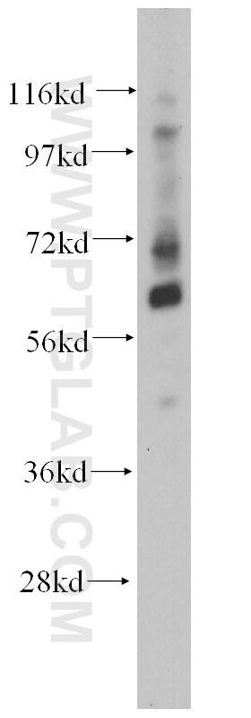 TCF7L1 Antibody in Western Blot (WB)