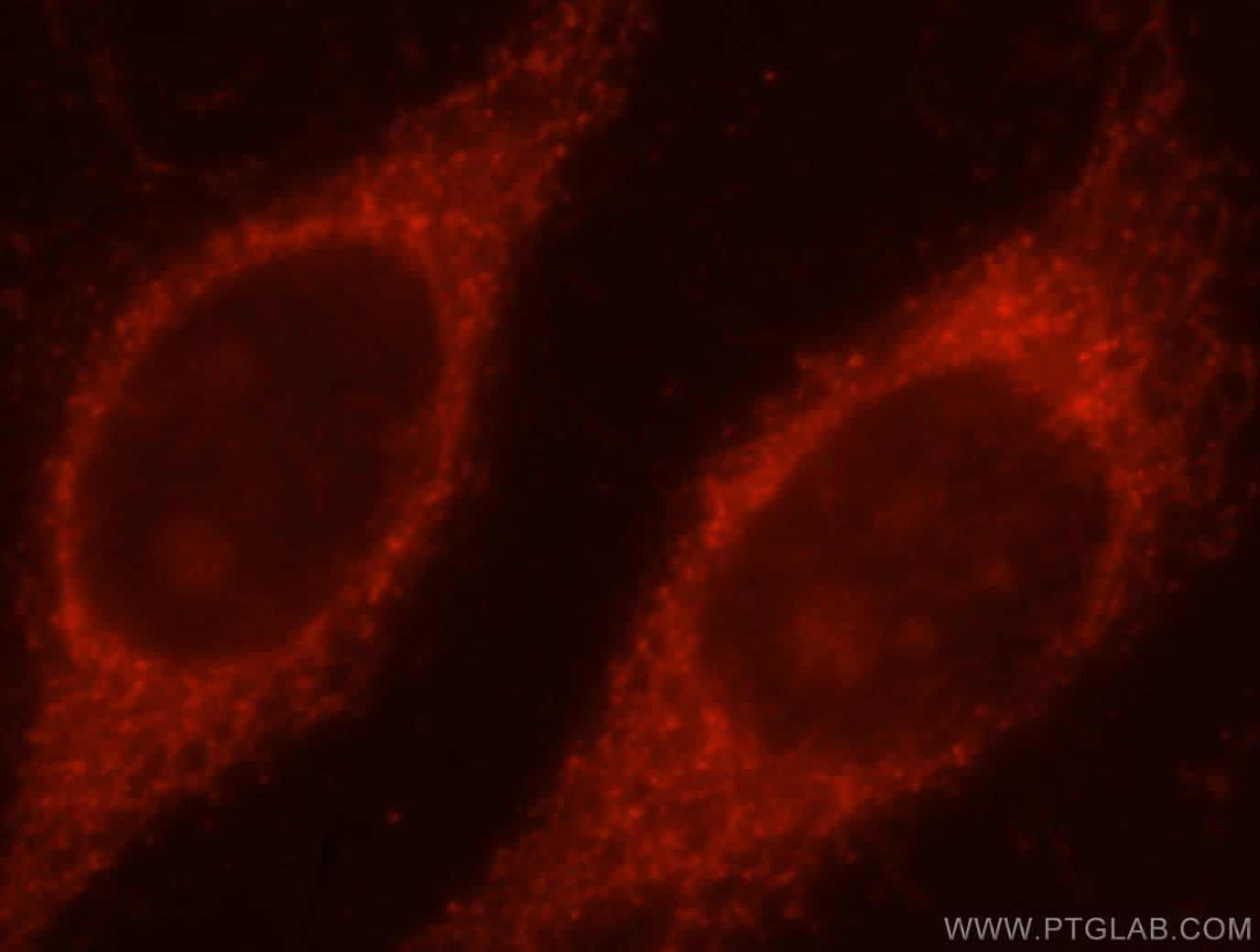 TOM70 Antibody in Immunofluorescence (IF)